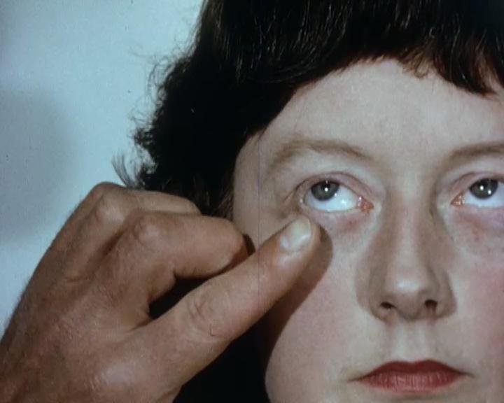 Fotograma del vídeo Medical_01  Material procedent del film, How to evert the upper eyelid (1948)  Medical_01, (2014-2015).  Color, so. Durada 00:04:19